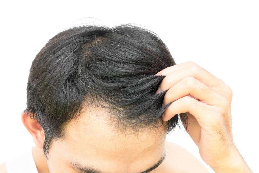 Natural Hair Thinning Remedies